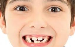 اسنان الاطفال