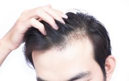 تساقط-الشعر